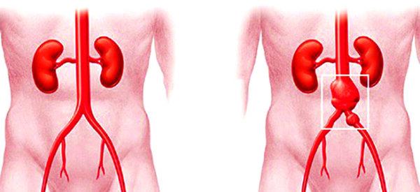 Phình động mạch chủ bụng AAA