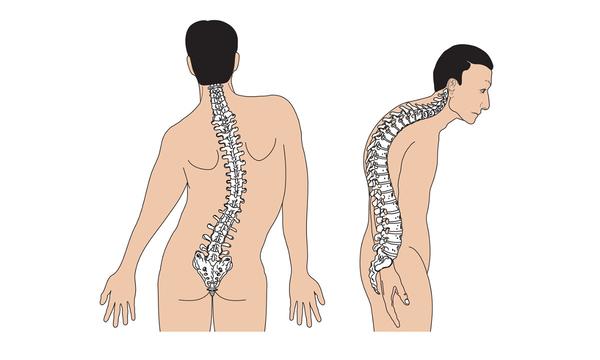 Đau cột sống thắt lưng có thể xảy ra khi cột sống của bệnh nhân bị cong vẹo sang một bên