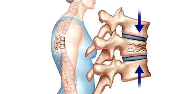 Gãy xương gây ra các cơn đau