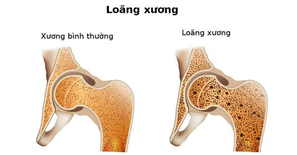 Loãng xương có thể gây ra tình trạng đau thắt lưng dưới