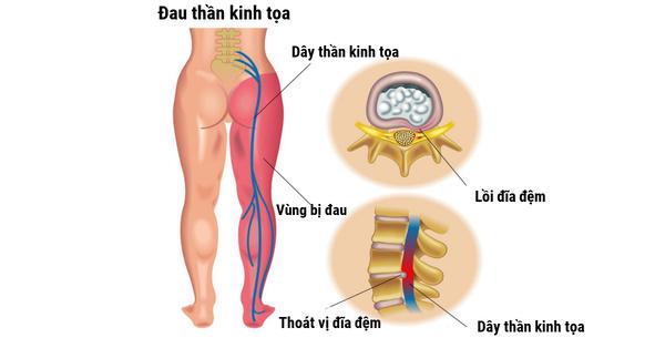 Đau thần kinh tọa cũng gây đau lưng dưới