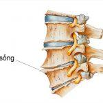 Bệnh gai cột sống có thể xuất hiện ở nhiều vị trí trên xương sống của cơ thể