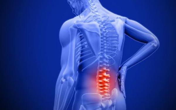 Thoái hóa cột sống là một trong số những nguyên nhân gây ra gai cột sống