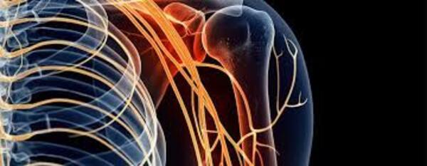 Đau nhức cổ vai gáy có thể dẫn tới đám rối thần kinh cánh tay bị tổn thương