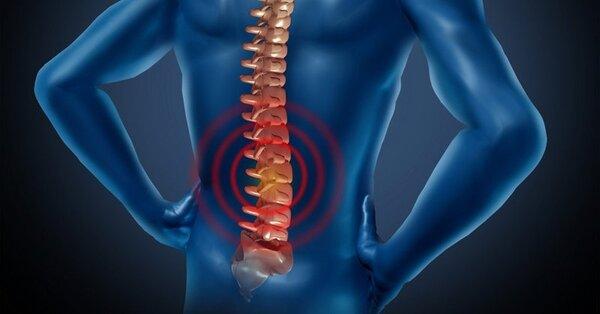 Chứng cứng cổ dễ dẫn đến đau rễ thần kinh