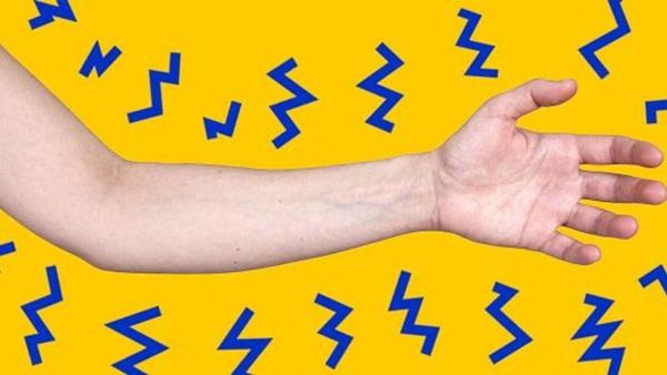 Người mắc tê bì chân tay có cảm giác tê như bị ngàn mũi kim đâm vào