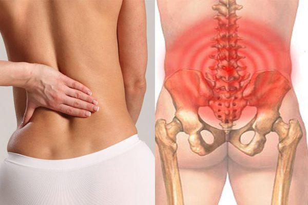 Bệnh nhân sẽ cảm thấy bị đau nhức dữ dội tại vùng lưng