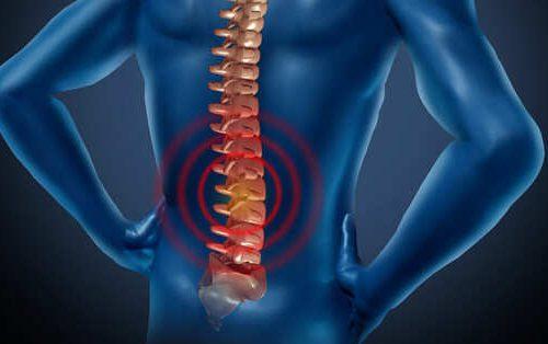 Người bệnh sẽ cảm thấy vùng thắt lưng bị tê bì