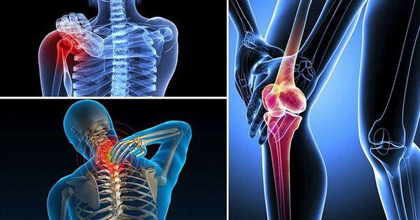 Tác động của những bệnh lý xương khớp ảnh hưởng rất nhiều