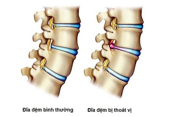 Thoát vị đĩa đệm cột sống là bệnh thường gặp