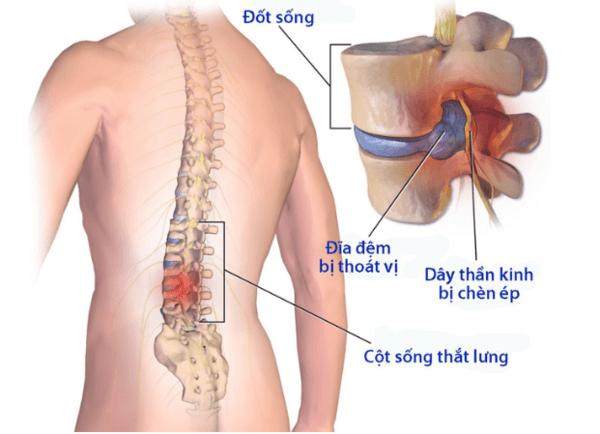 Cột sống thắt lưng là vị trí chịu nhiều áp lực nhất của cơ thể