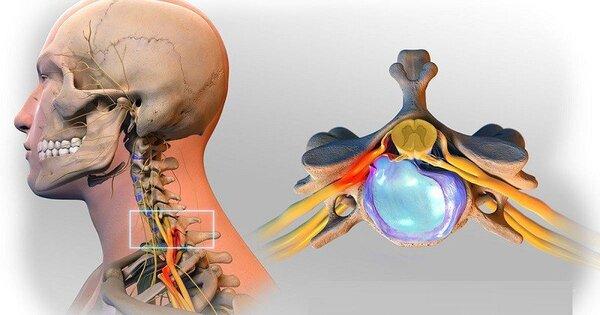 Thoát vị đĩa đệm đốt sống cổ sẽ gây ra các triệu chứng đau nhức vùng cổ, vai, sau gáy