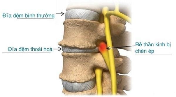 Đau rễ thần kinh do bị chèn ép
