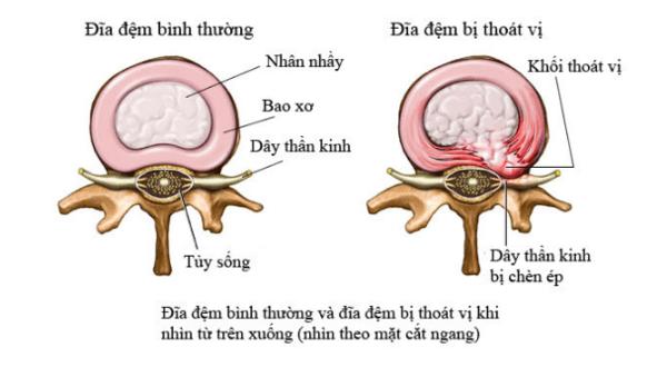 Giải phẫu bệnh đĩa đệm cột sống thắt lưng