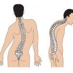 Các đường cong vai hoặc eo của bệnh nhân bị mất cân xứng