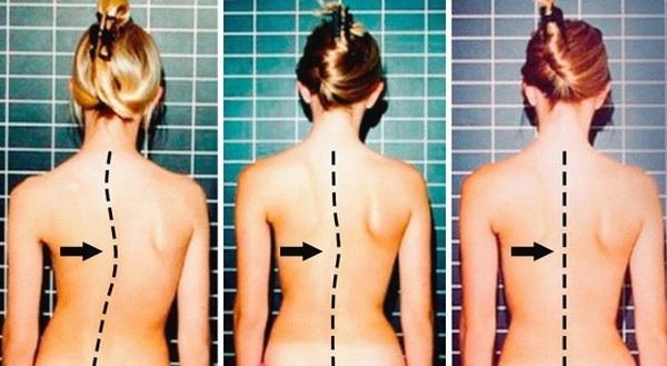 Khi bị vẹo cột sống thắt lưng, bệnh nhân sẽ có những dấu hiệu bất thường