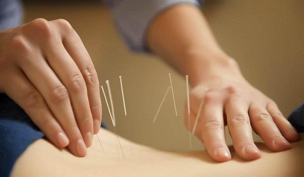 Cách giảm đau lưng bằng phương pháp châm cứu
